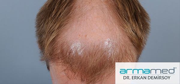 Hair Transplant Armamed  FUE Hair Transplantation Technique